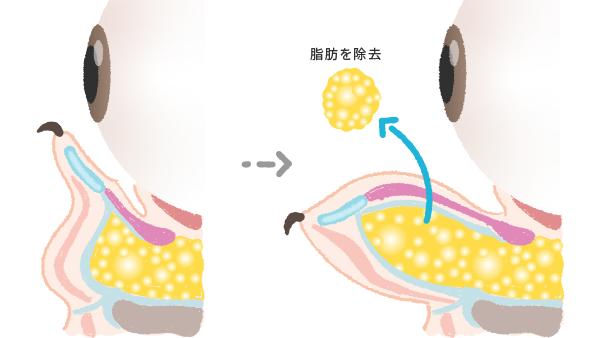 経結膜脱脂法