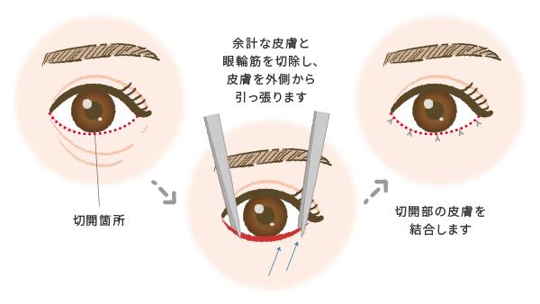 皮膚切除(下まぶたのたるみ取り)