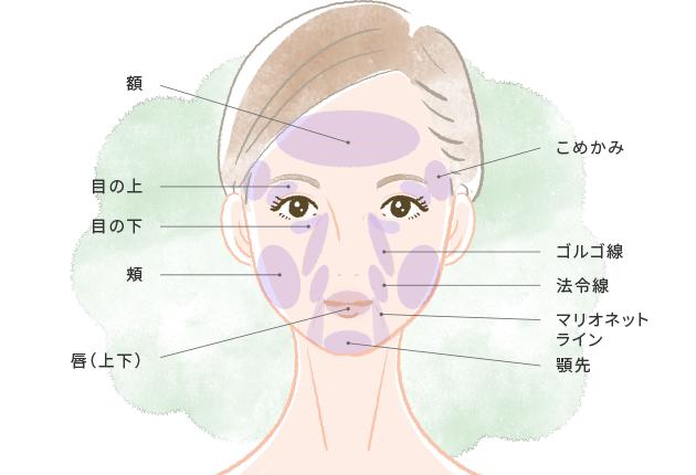 顔の脂肪注入適応部位