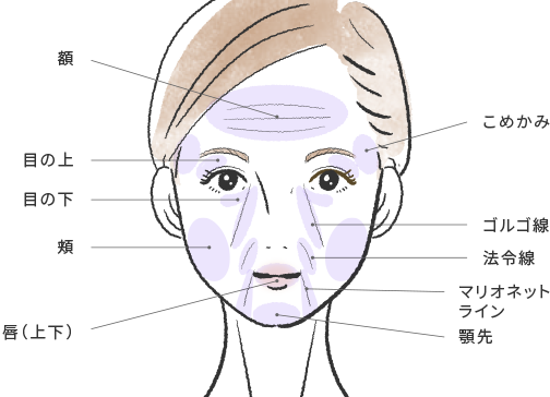 顔の脂肪注入