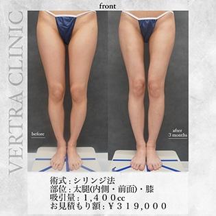 脂肪吸引(脚)