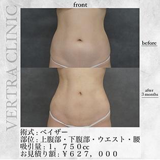 ベイザー脂肪吸引(下腹部・ウエスト・腰)