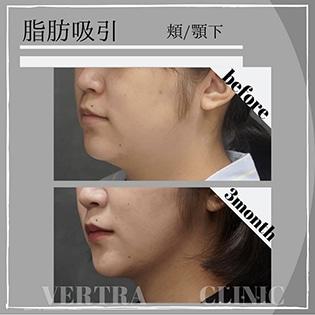 脂肪吸引(頬・顎下)
